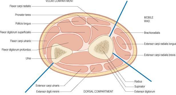 Hand & Forearm Compartment Syndrome - Trauma - Orthobullets
