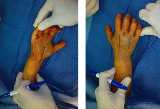 Hand Forearm Compartment Syndrome Trauma Orthobullets