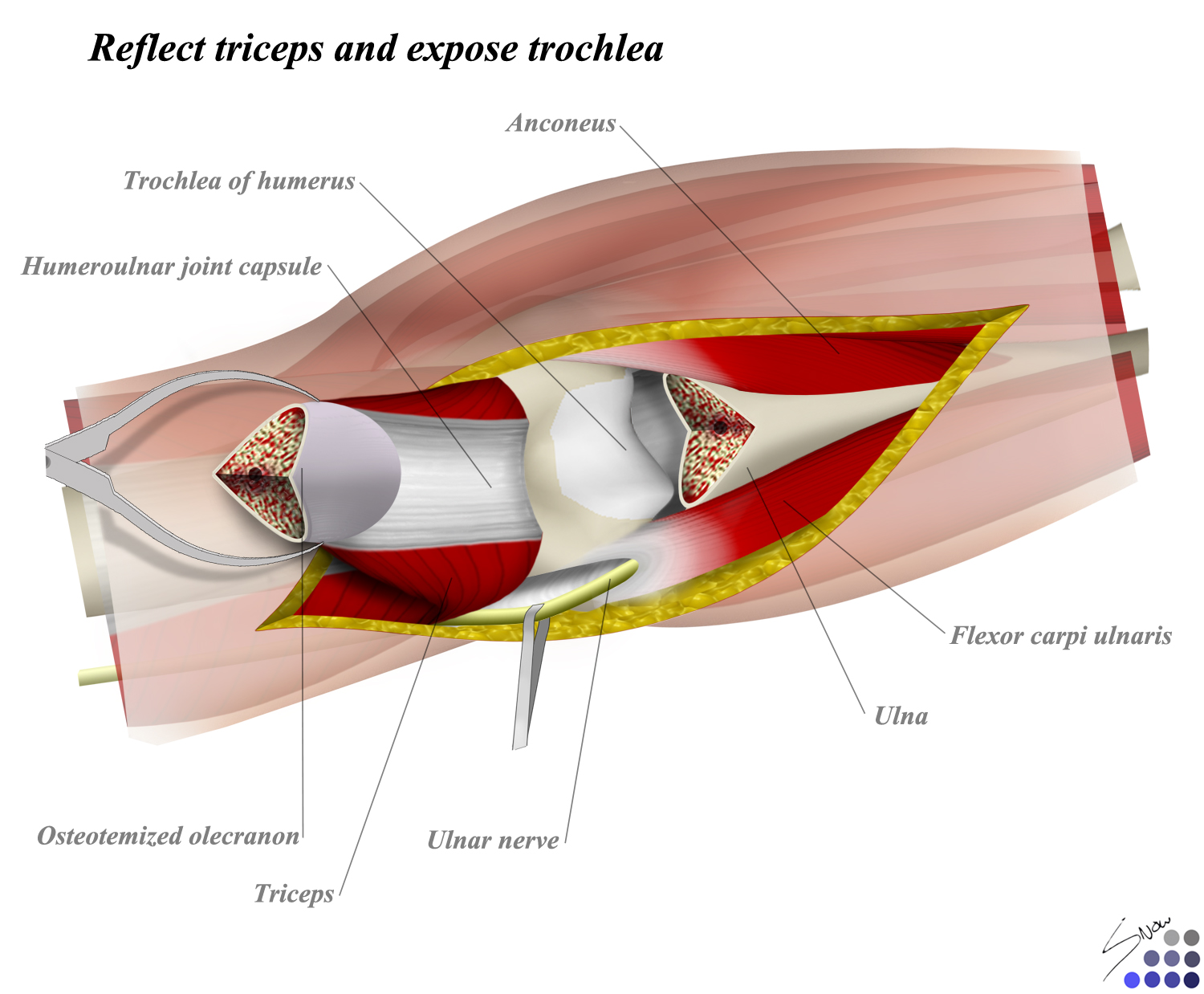 Posterior Approach to Elbow - Approaches - Orthobullets