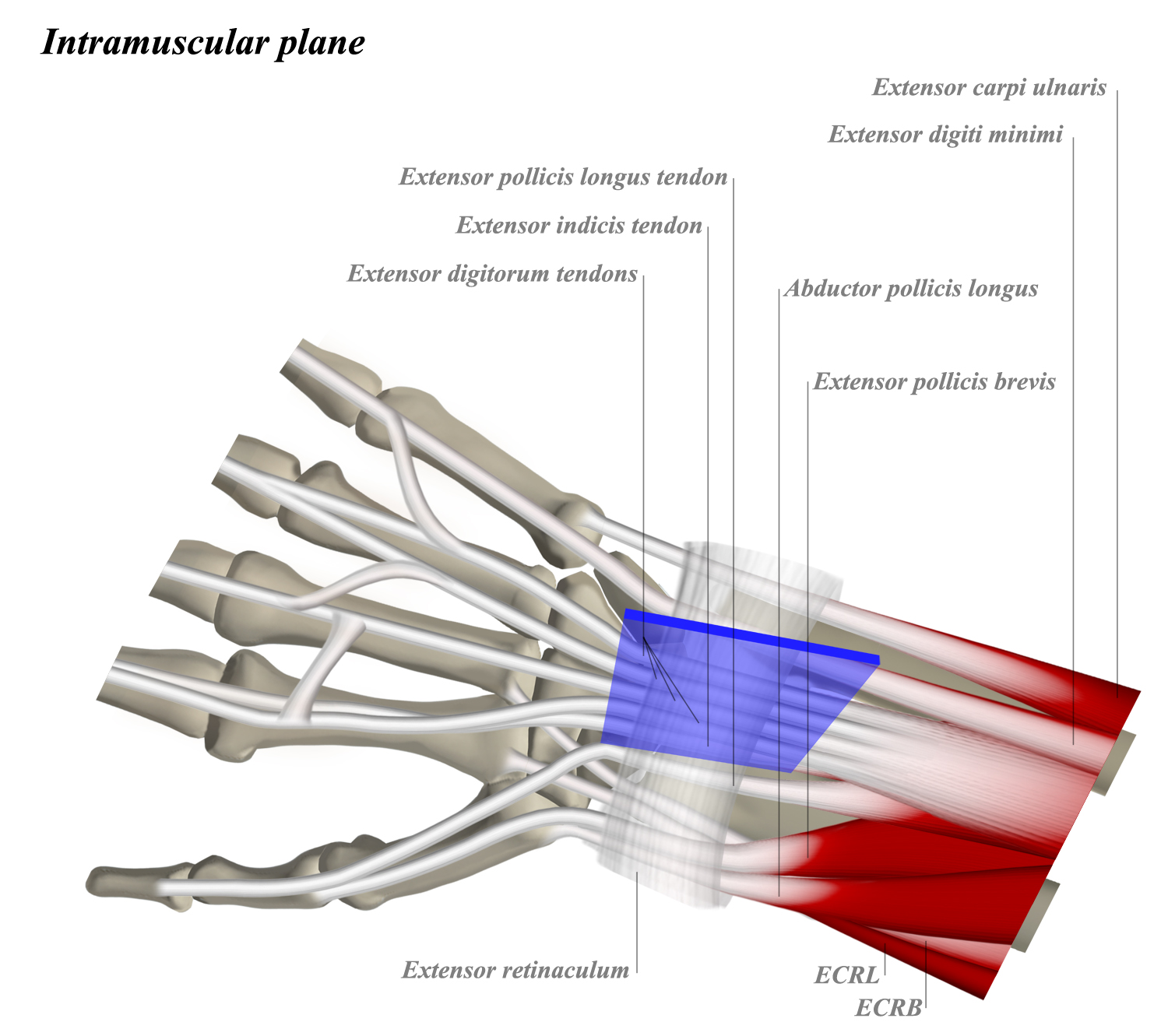 Dorsal Approach To The Wrist Approaches Orthobullets