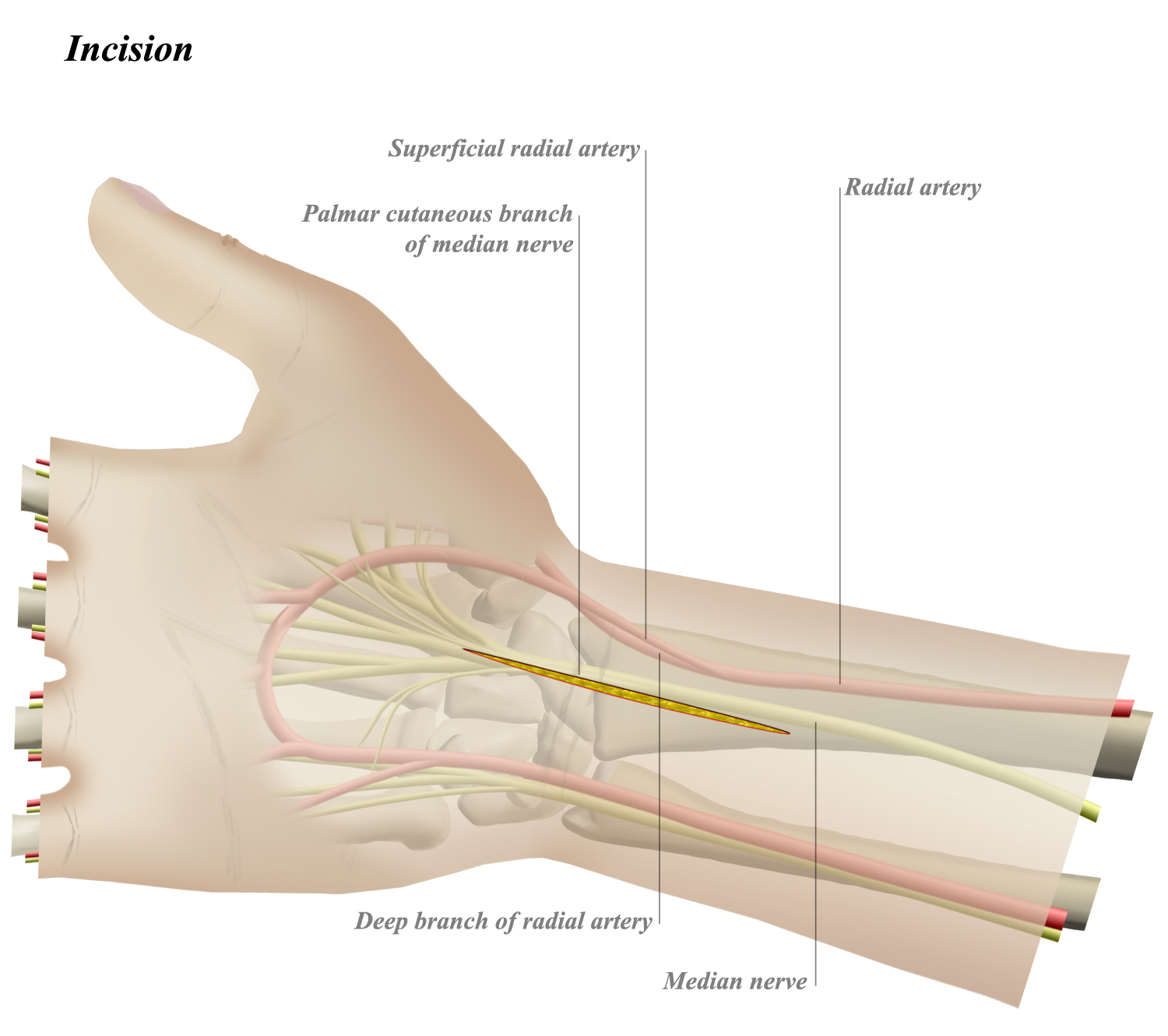 Volar Approach To Wrist Approaches Orthobullets