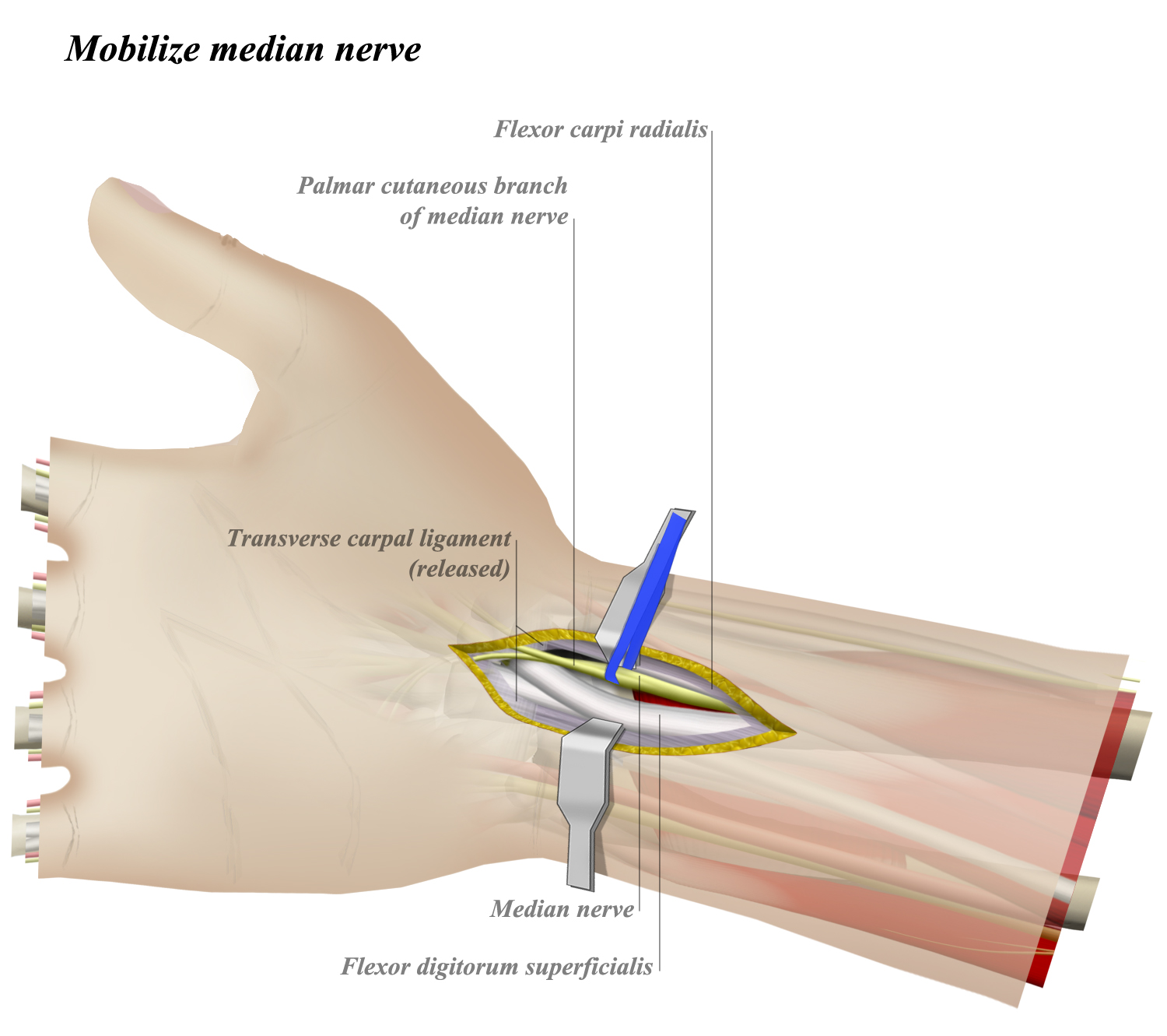 Volar Approach to Wrist - Approaches - Orthobullets
