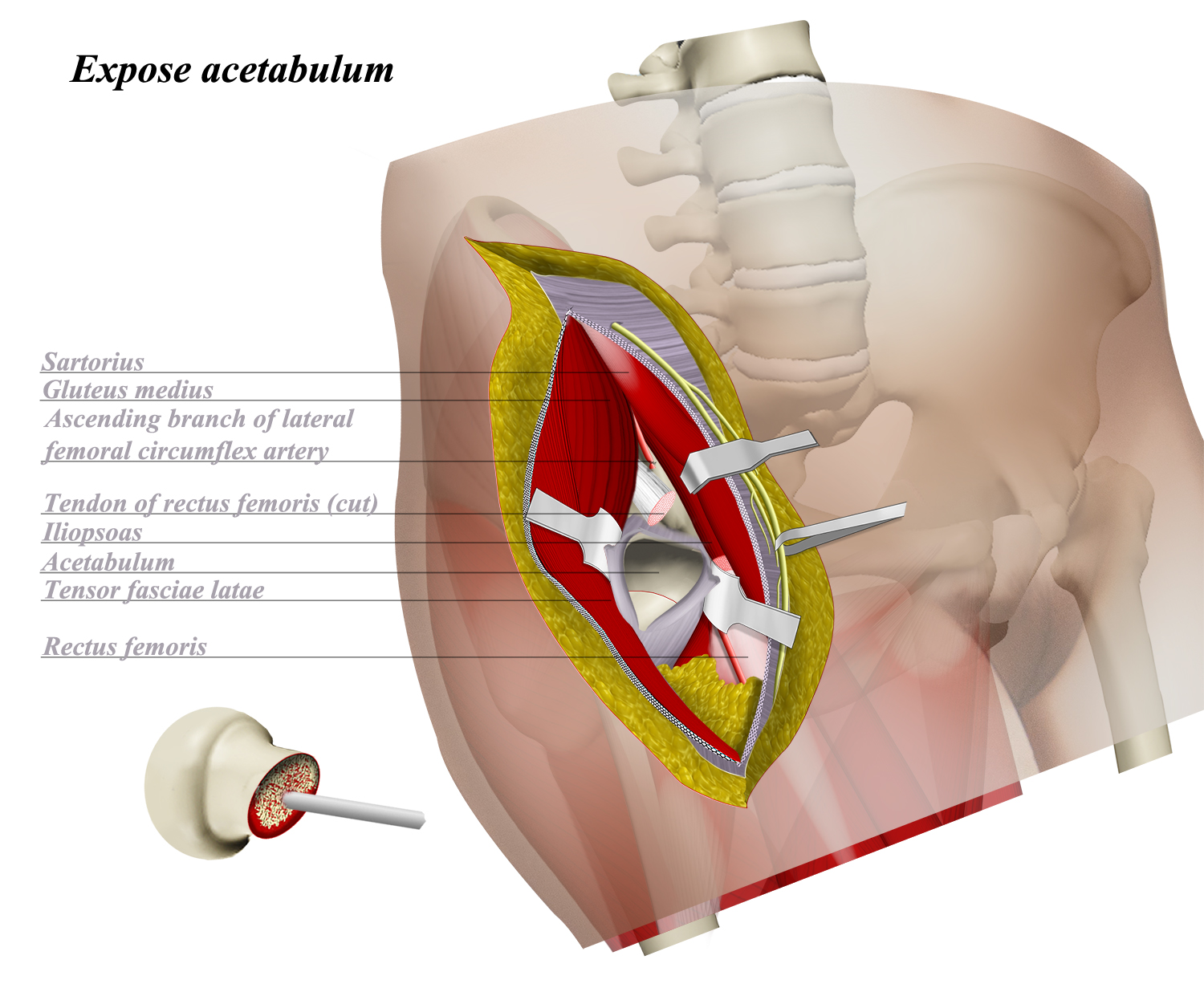 Hip Anterior Approach (Smith-Petersen) - Approaches - Orthobullets