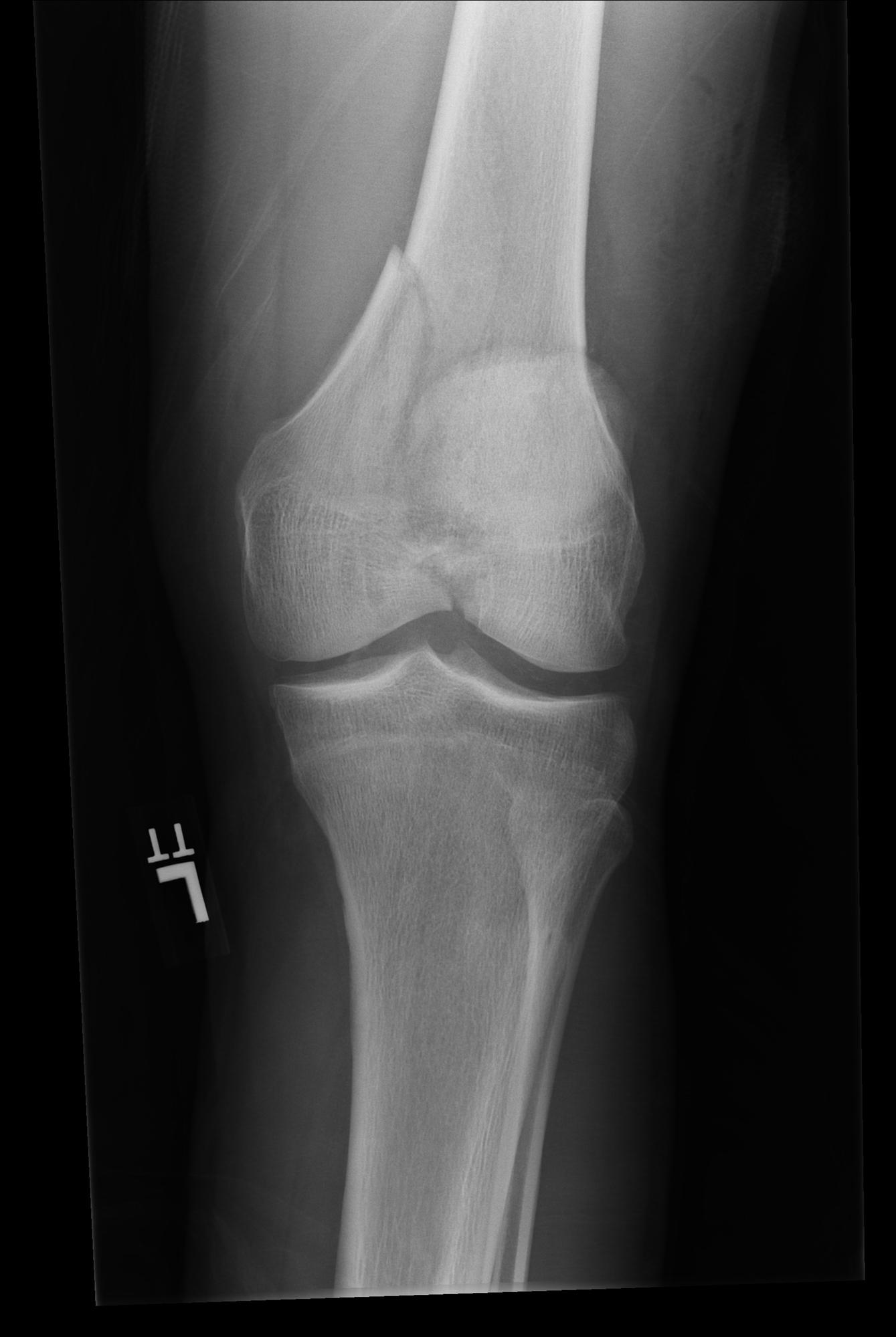 https://upload.orthobullets.com/topic/12026/images/preop femur ap.jpg