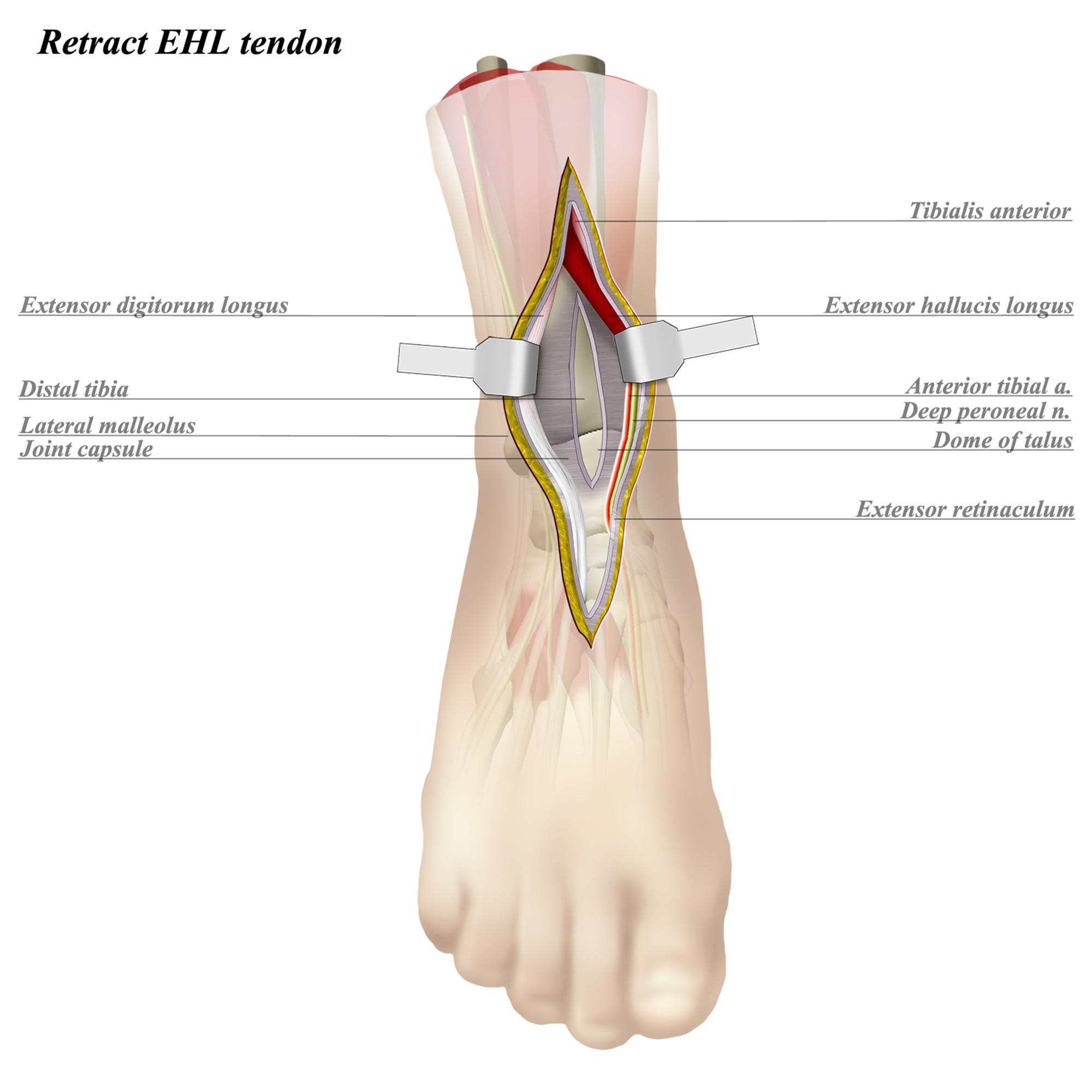 Ankle Anterior Approach - Approaches - Orthobullets