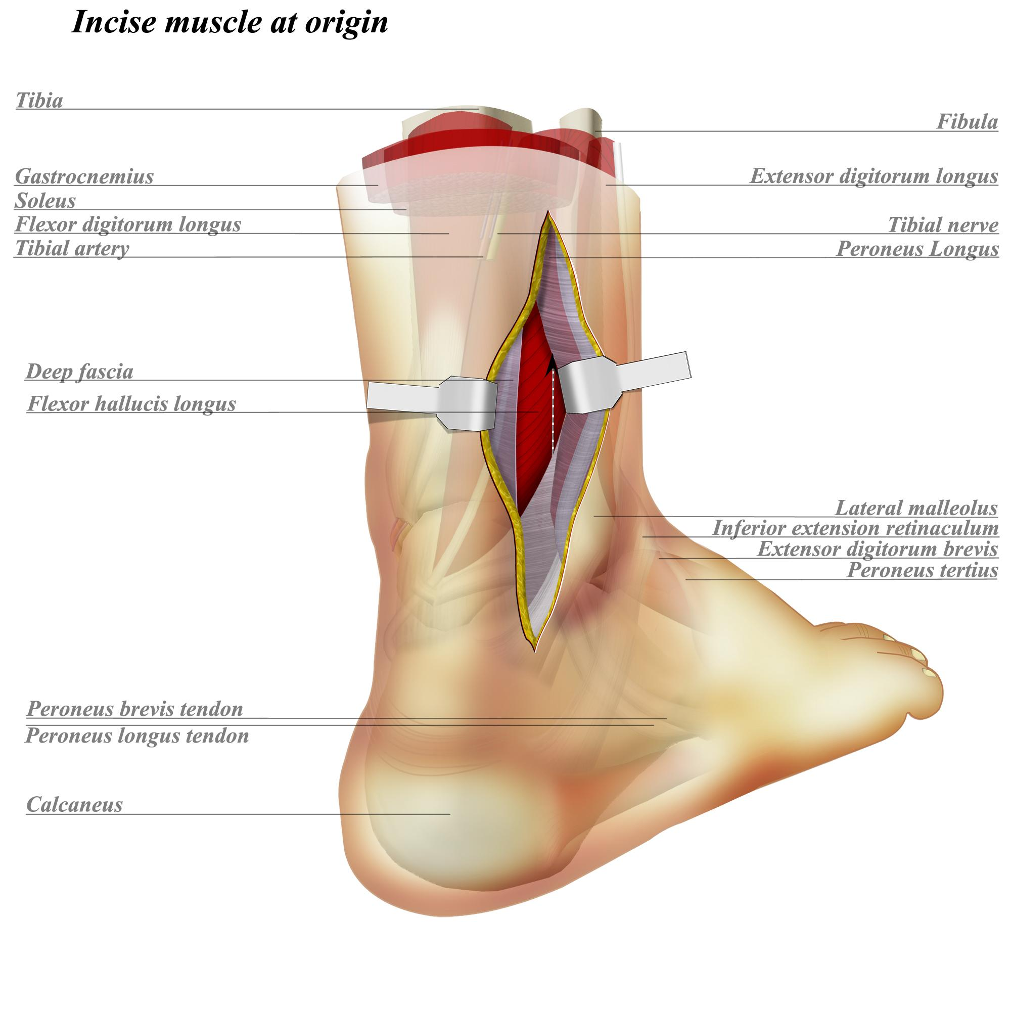 Ankle Posterolateral Approach Approaches Orthobullets