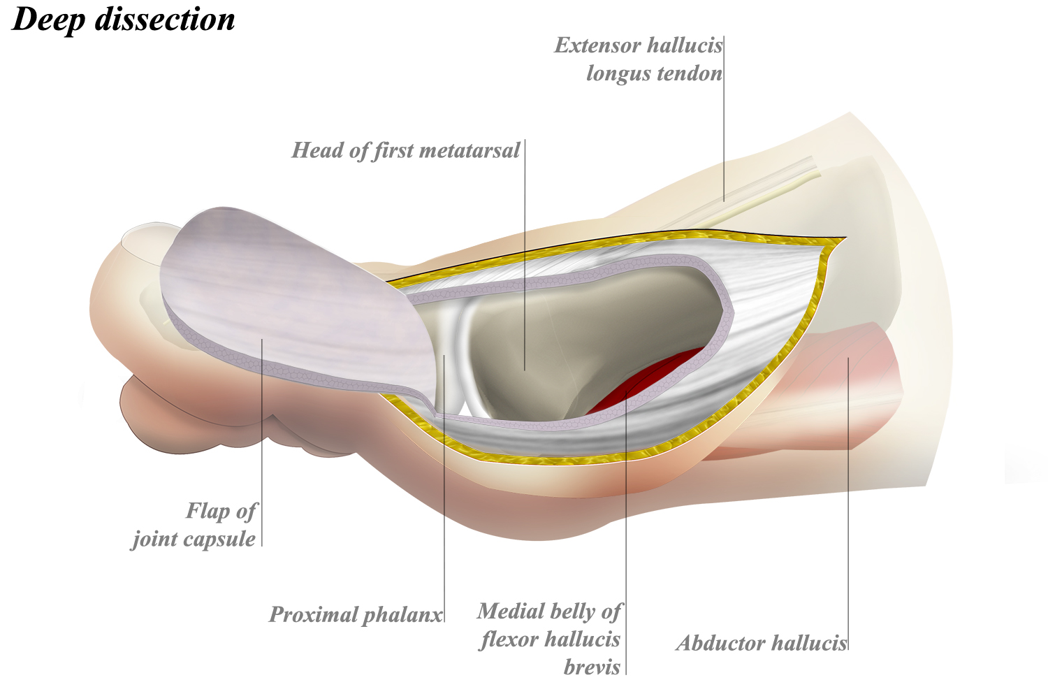 Dorsomedial Approach to MTP Joint of Great Toe - Approaches ...