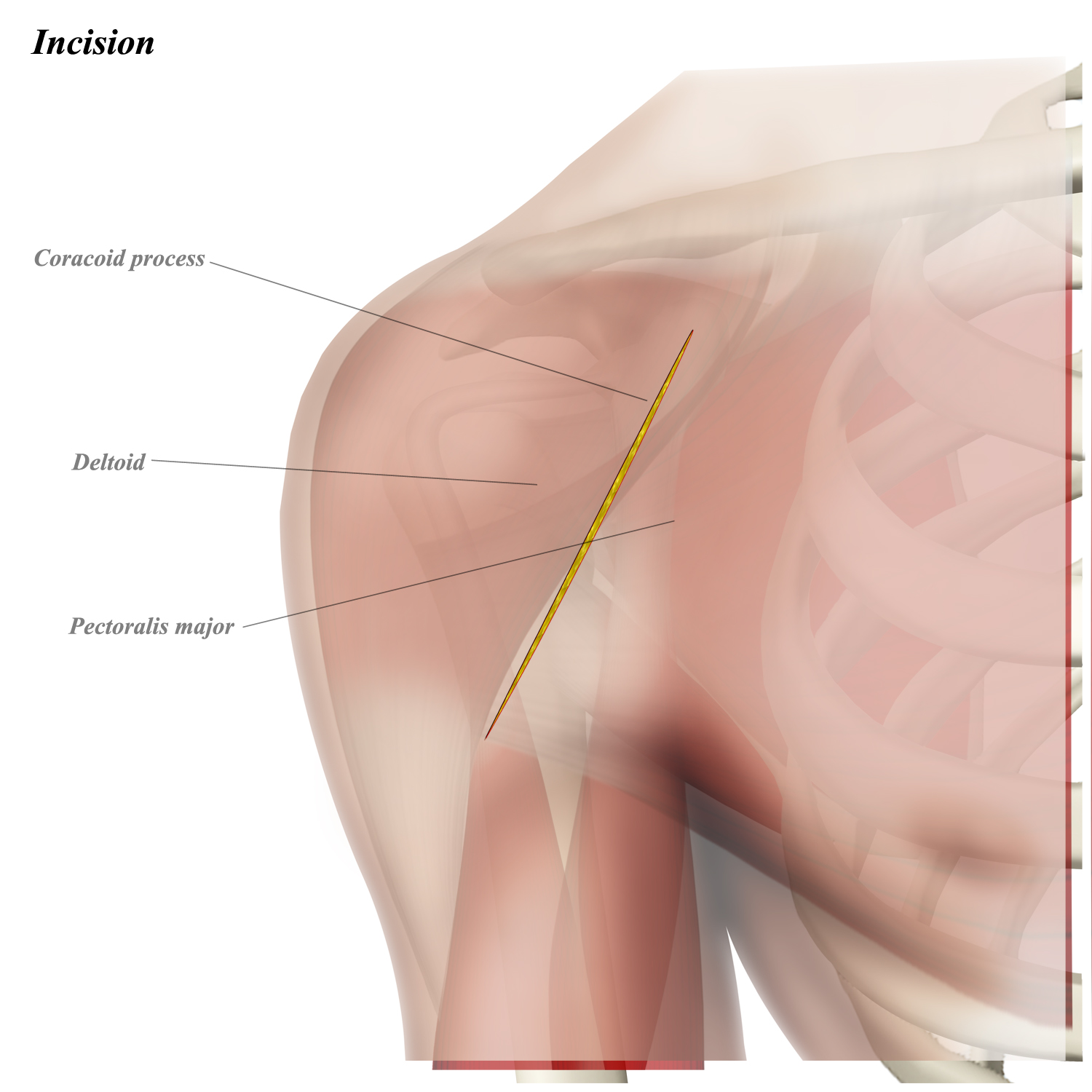 Shoulder Anterior (Deltopectoral) Approach - Approaches - Orthobullets