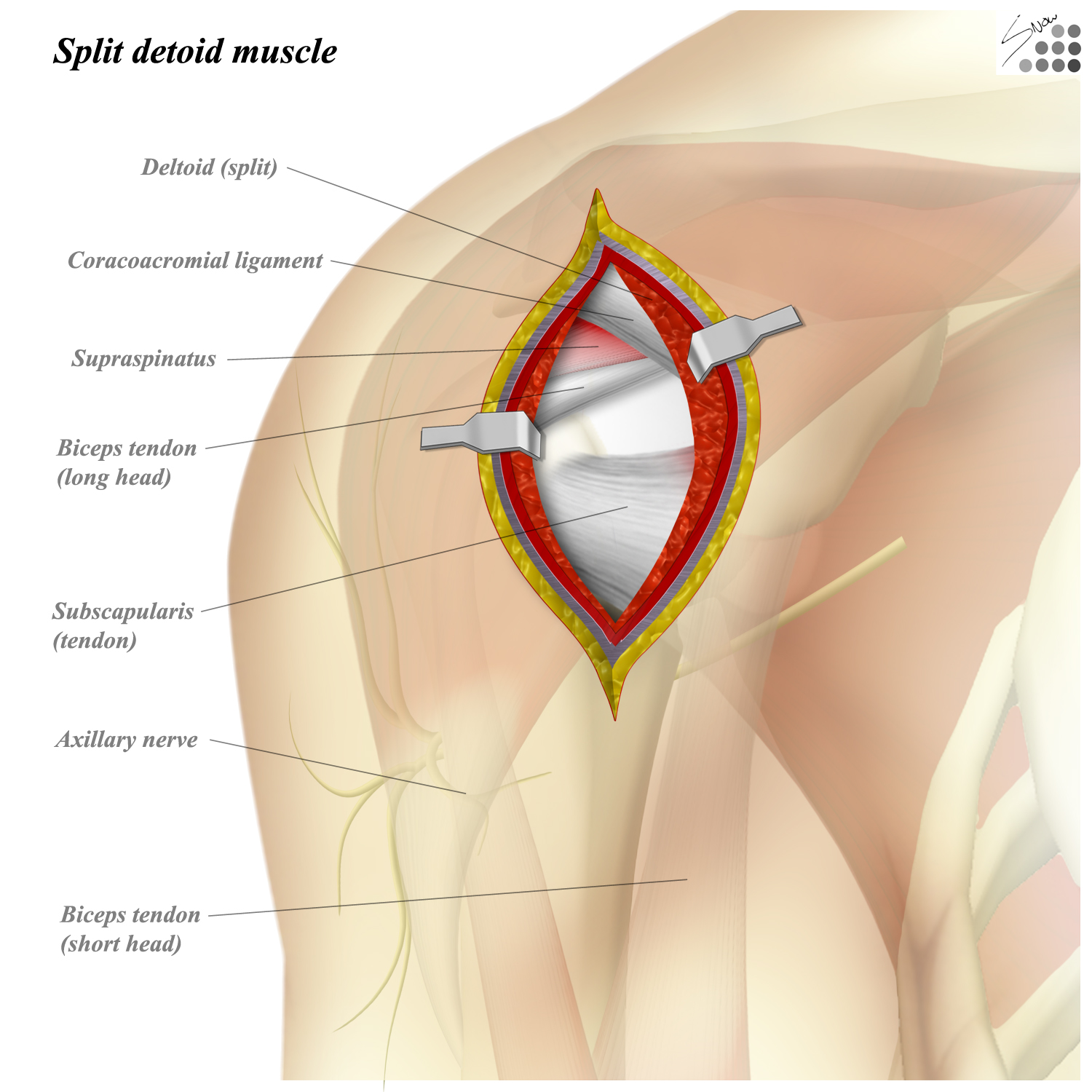 Shoulder Anterolateral Approach Approaches Orthobullets