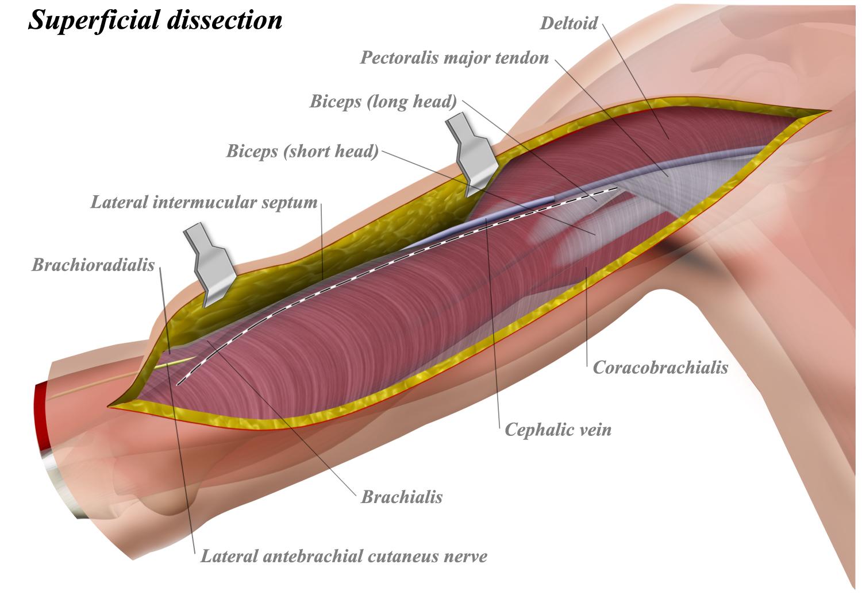 Anterior (Brachialis Splitting) Approach to Humerus - Approaches ...