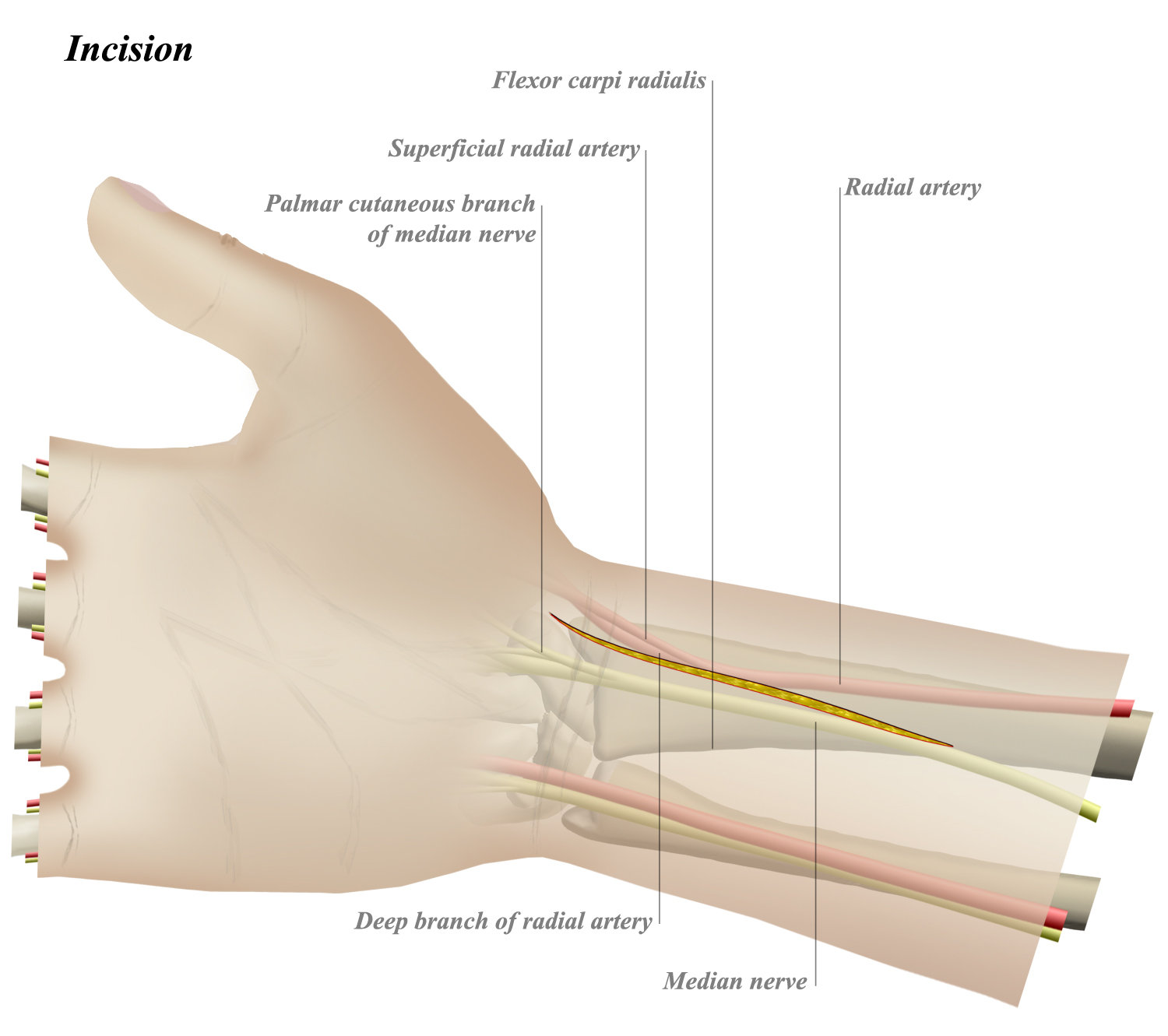 FCR Approach to Distal Radius - Approaches - Orthobullets