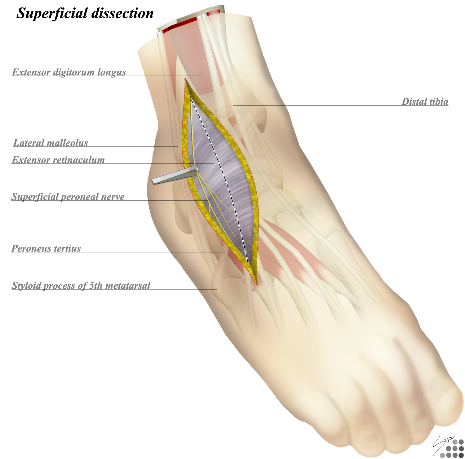 Ankle Anterolateral Approach - Approaches - Orthobullets