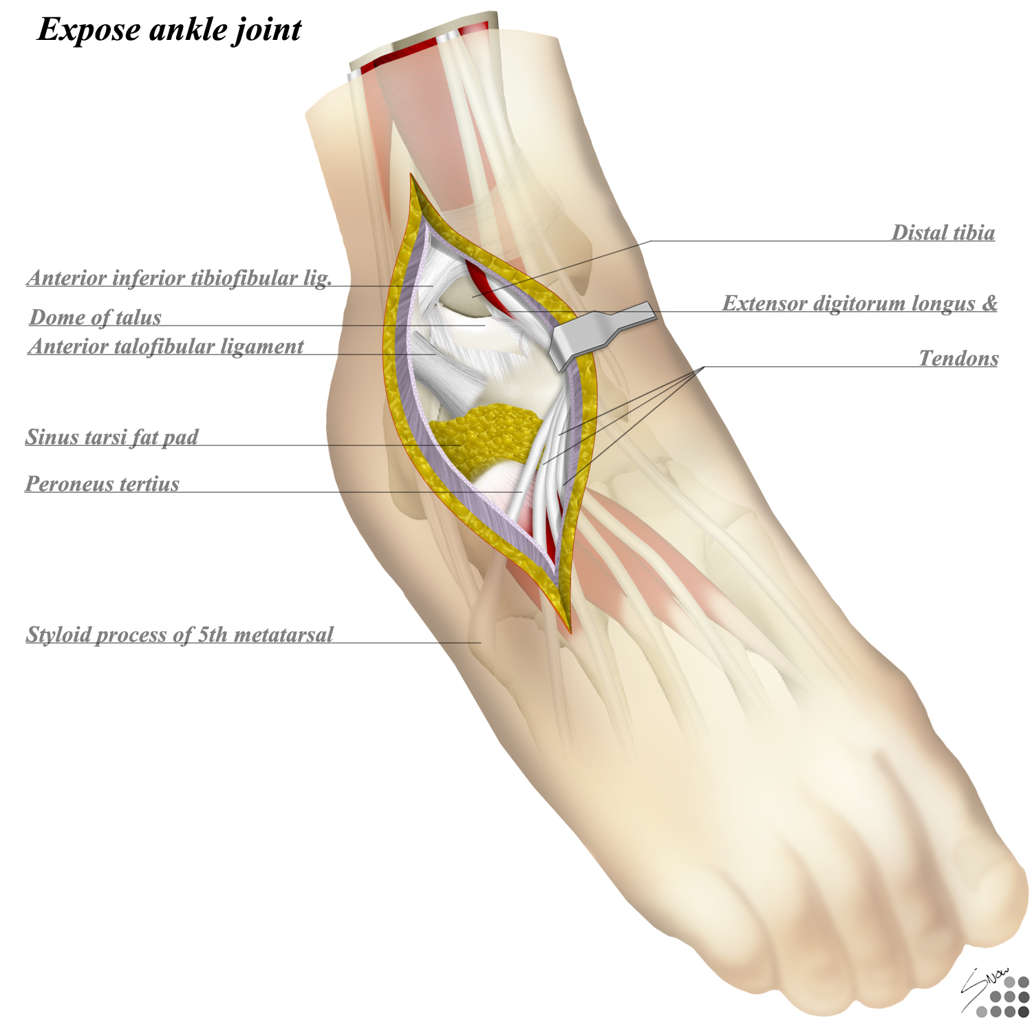 Ankle Anterolateral Approach Approaches Orthobullets
