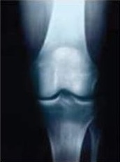 Knee Osteoarthritis - Recon - Orthobullets