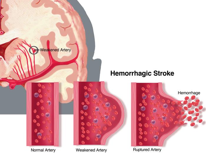 https://upload.orthobullets.com/topic/12288/images/hemorrhagicstroke-large.jpg
