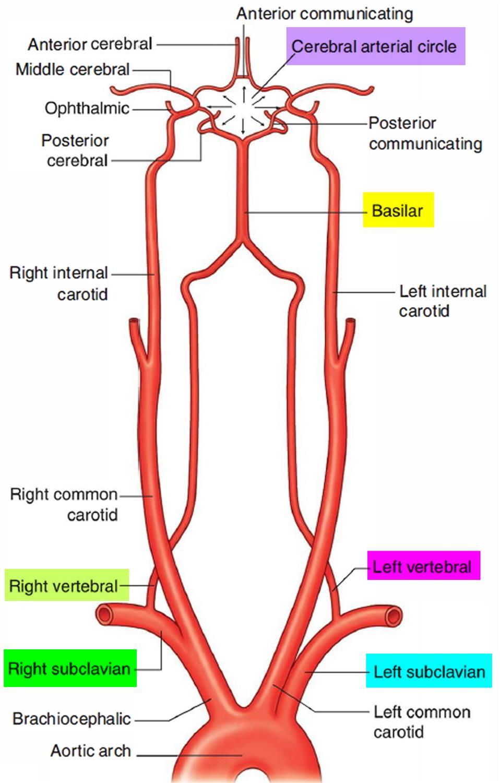 Acute Subclavian Artery Thrombosis - Hand - Orthobullets
