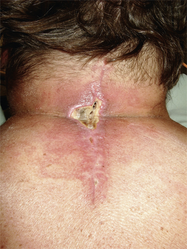 https://upload.orthobullets.com/topic/12737/images/wound_infection..jpg