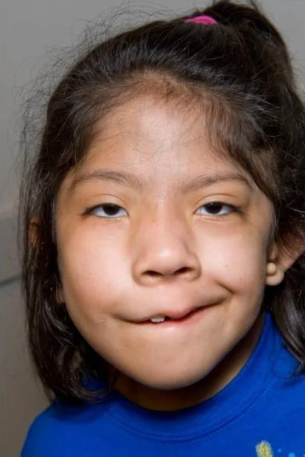 https://upload.orthobullets.com/topic/12745/images/goldenhar_syndrome.jpg