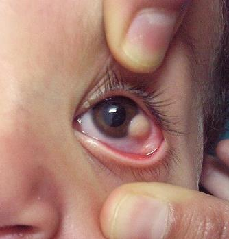 https://upload.orthobullets.com/topic/12745/images/goldenhar_syndrome_limbal_dermoid.jpg