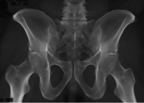 https://upload.orthobullets.com/topic/12768/images/femoral_head_fracture_3.jpg