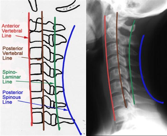 Cervical Spine Trauma Evaluation - Spine - Orthobullets