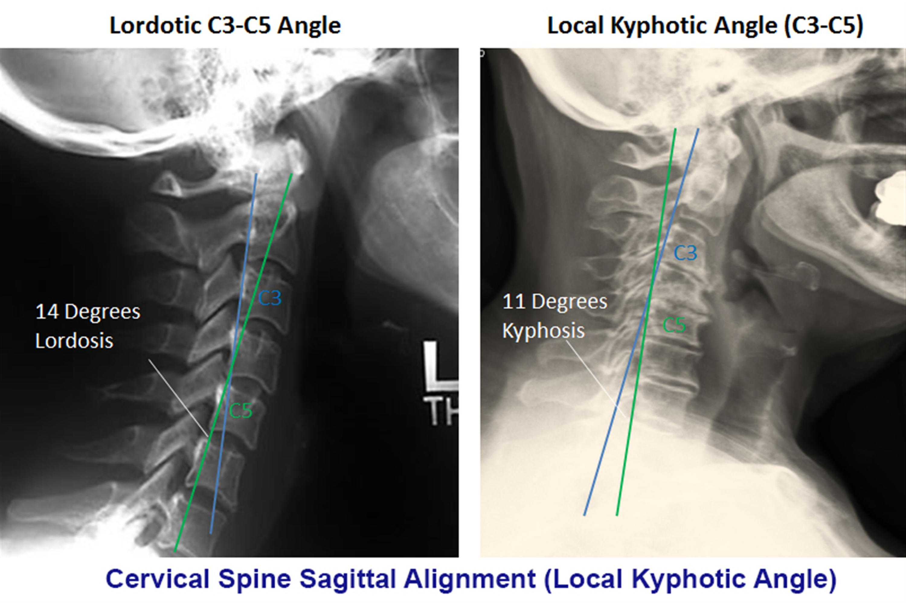 https://upload.orthobullets.com/topic/2031/images/local kyphotic angle.jpg
