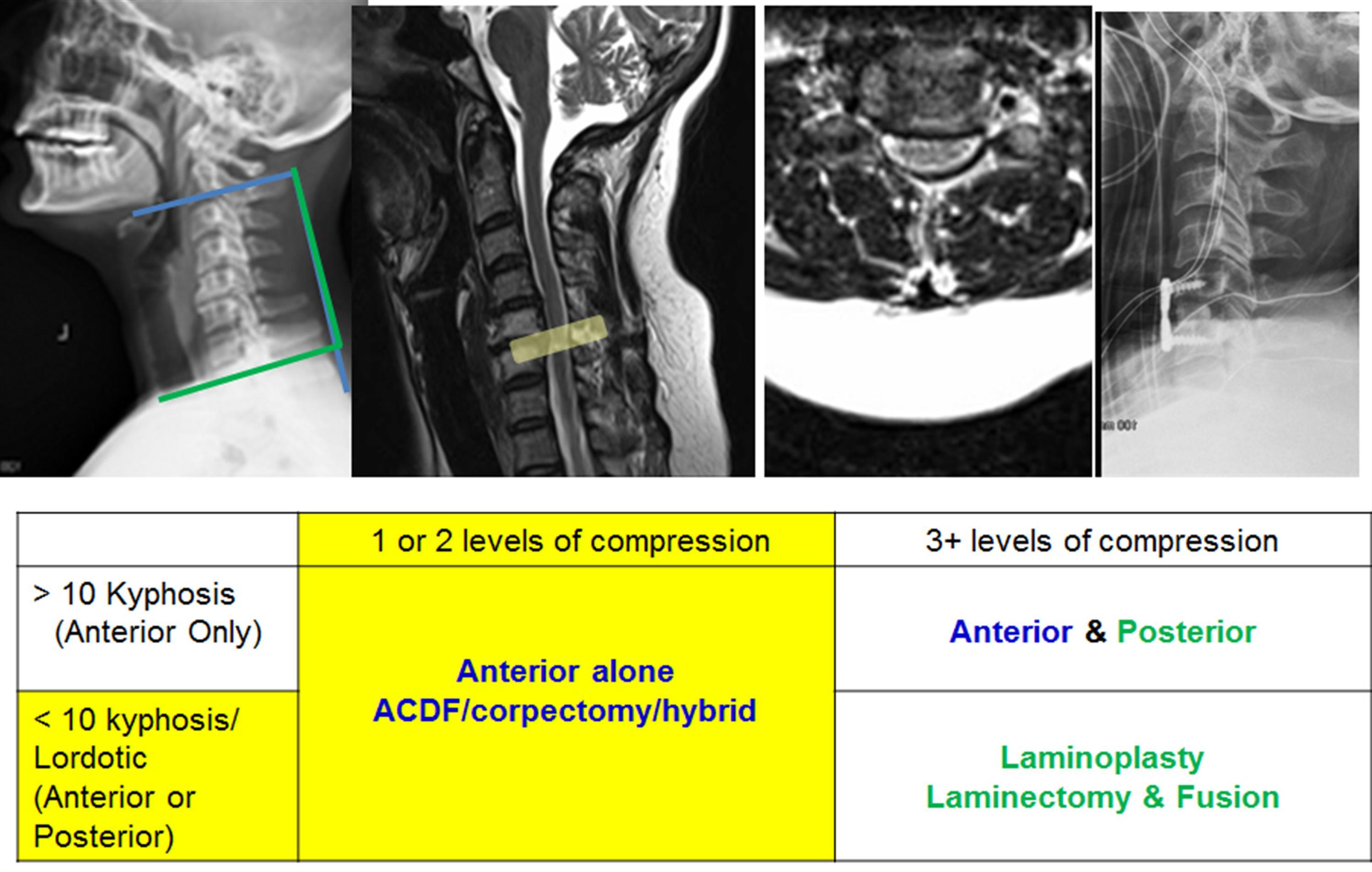 Cervical Myelopathy Spine Orthobullets