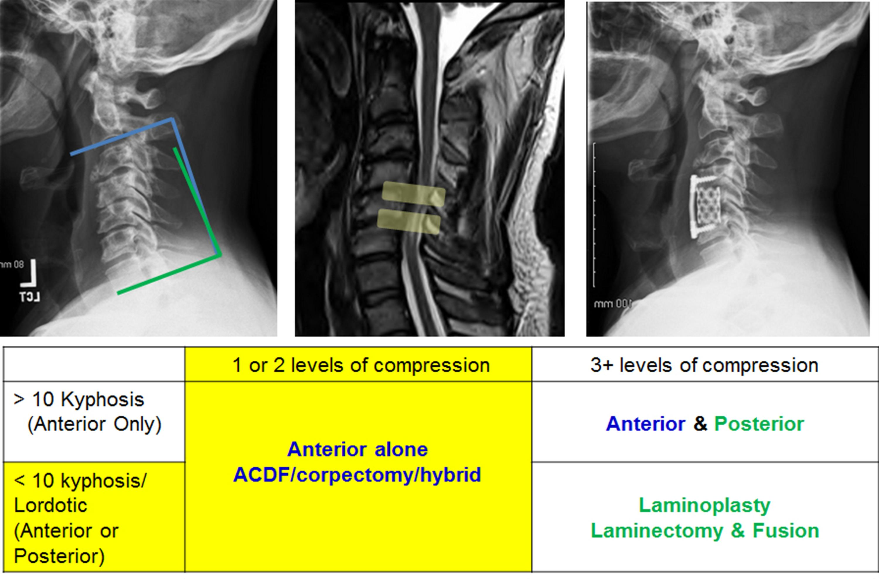 Cervical Myelopathy - Spine - Orthobullets
