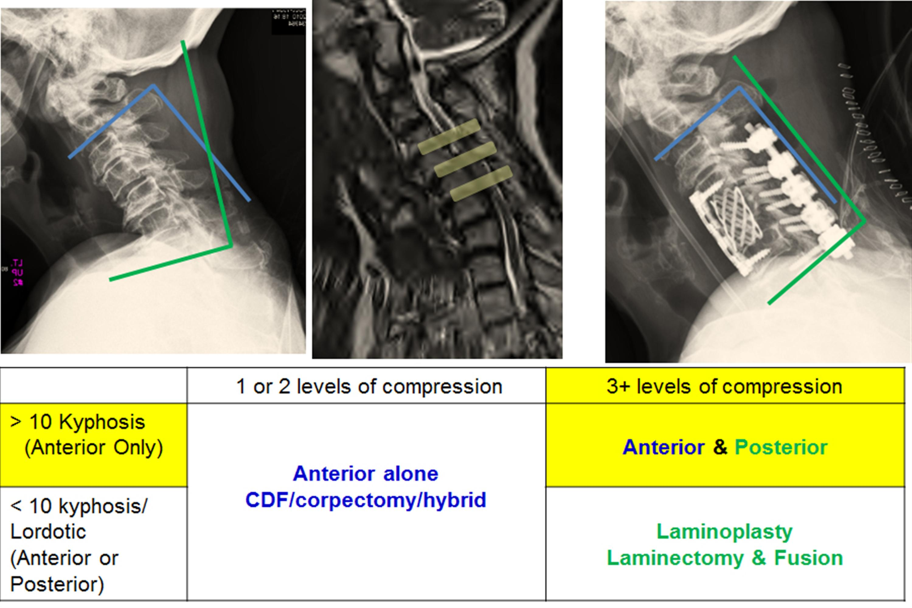 Cervical Myelopathy - Spine - Orthobullets