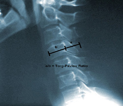 https://upload.orthobullets.com/topic/2032/images/xray-cervical-lateral - shows torg ratio small.jpg