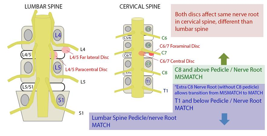 Lumbar Disc Herniation Spine Orthobullets