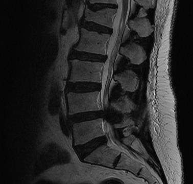 https://upload.orthobullets.com/topic/2037/images/stenosis3.jpg