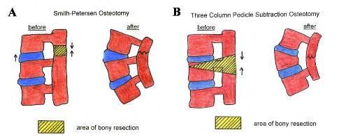 https://upload.orthobullets.com/topic/2041/images/osteotomies.jpg
