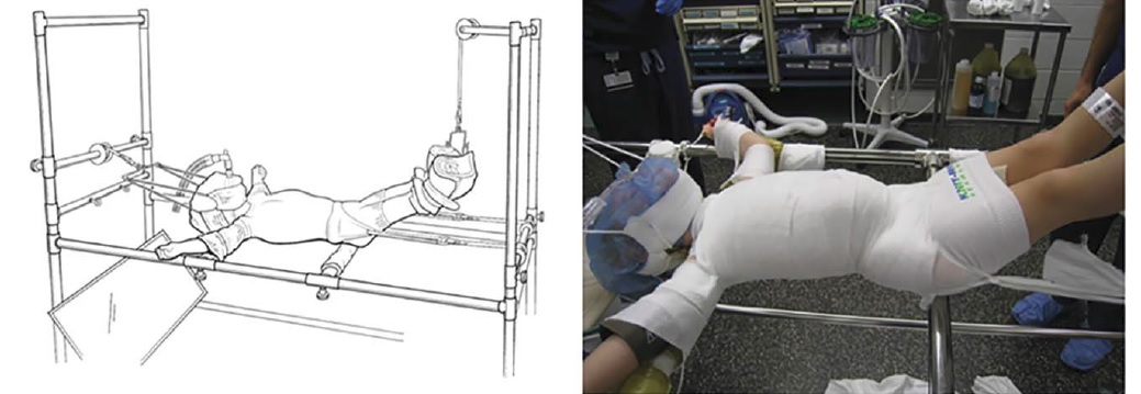 https://upload.orthobullets.com/topic/2055/images/mheta_cast_patient_on_table.jpg