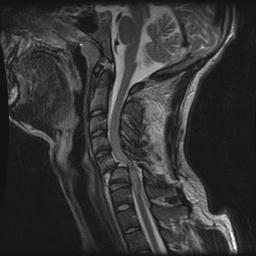 Cervical Facet Dislocations & Fractures - Spine - Orthobullets