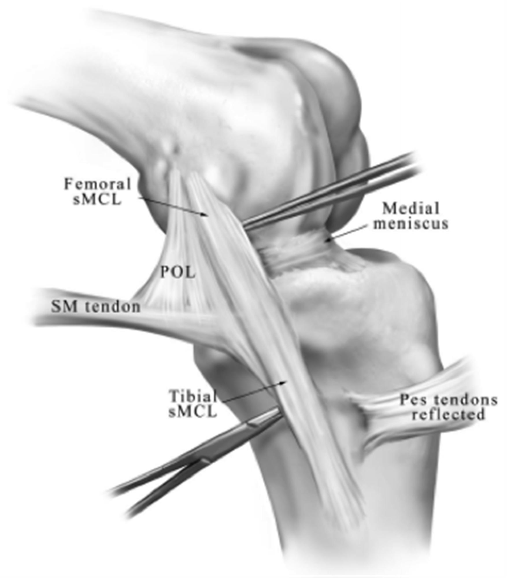 Ligaments Of The Knee Knee Sports Orthobullets