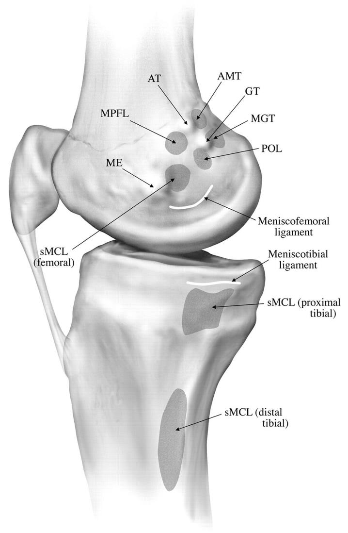 Patellofemoral Joint Knee Sports Orthobullets