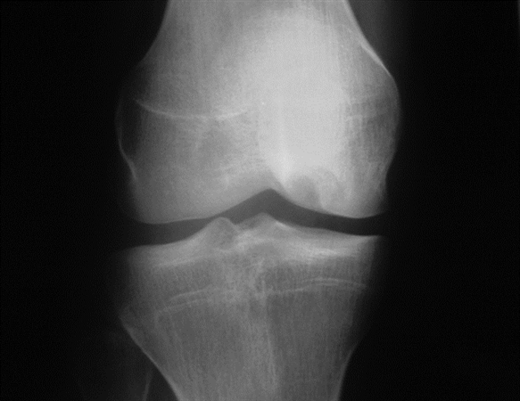 https://upload.orthobullets.com/topic/3004/images/osteochondral lesion xray.jpg