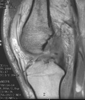 https://upload.orthobullets.com/topic/3008/images/MRI - sagital - ACL tear_moved.jpg