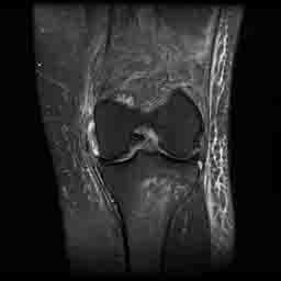 https://upload.orthobullets.com/topic/3010/images/MRI - MCL injury_moved.jpg