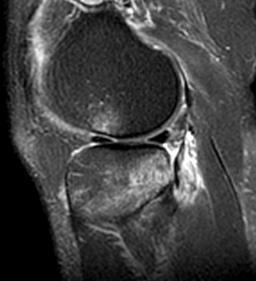 Posterolateral corner injury knee sports orthobullets posterolateral corner injury ccuart Images