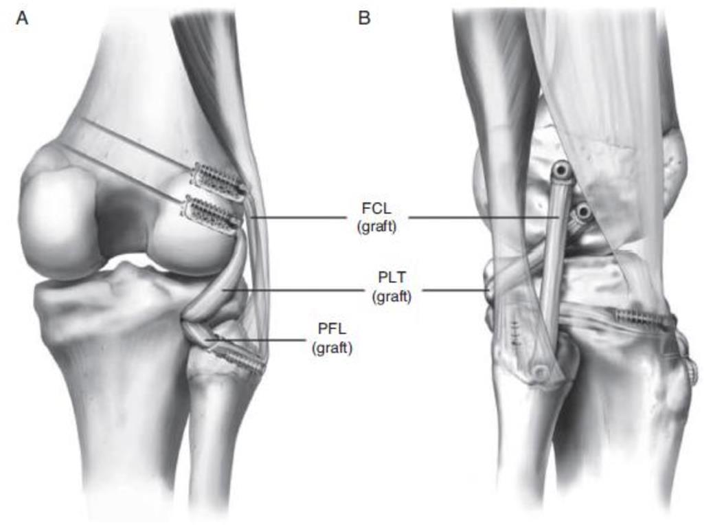 Posterolateral Corner Injury Knee Sports Orthobullets