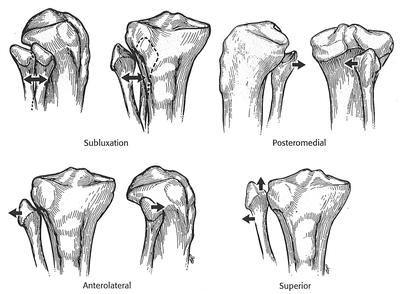 Fibular head anatomy