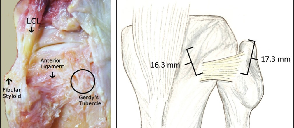 https://upload.orthobullets.com/topic/3014/images/proximal tibiofibular joint anterior ligament.jpg