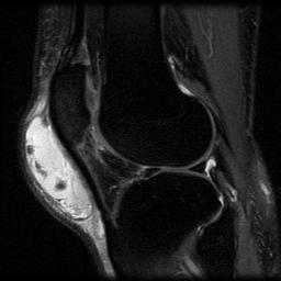 https://upload.orthobullets.com/topic/3018/images/clinical image prepatellar bursitis.jpg