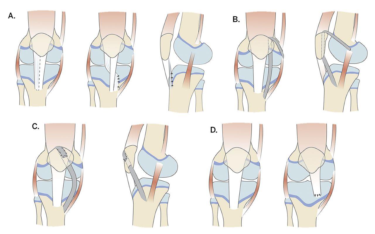 Patellar Instability Knee Sports Orthobullets