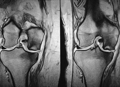 Spontaneous Osteonecrosis Of The Knee SONK Knee Sports