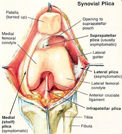 Plicae Knee Sports Orthobullets