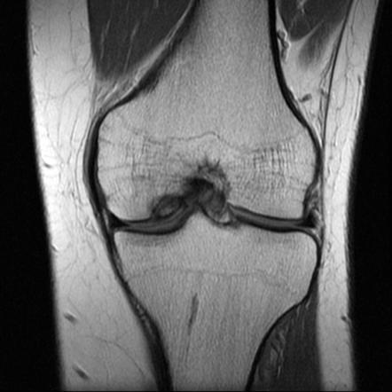 osteochondritis dissecans)