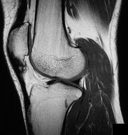 Sinding-Larsen-Johansson Syndrome - Knee & Sports - Orthobullets